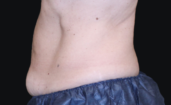 truSculpt iD fat removal after treatment - Amy Taub MD