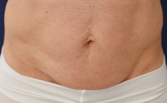 truSculpt iD fat removal before