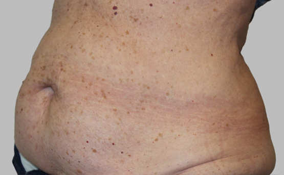 truSculpt iD fat removal 12 weeks after 1 treatment