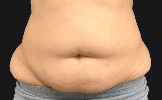 truSculpt iD fat removal before treatment