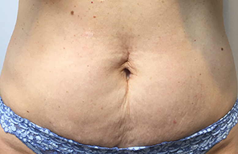 truSculpt 3D fat removal before treatment - Photo courtesy of Christie Lorton, M.D.