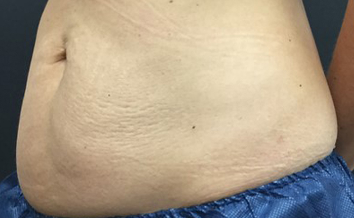 truSculpt 3D fat removal before treatment - Photo courtesy of Michael McGuiness, M.D.