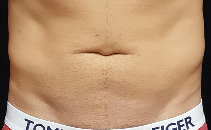 truSculpt 3D fat removal after treatment - Photo courtesy of Mira Kaga, M.D.