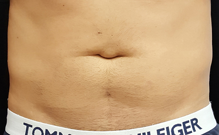 truSculpt 3D fat removal before treatment - Photo courtesy of Mira Kaga, M.D.