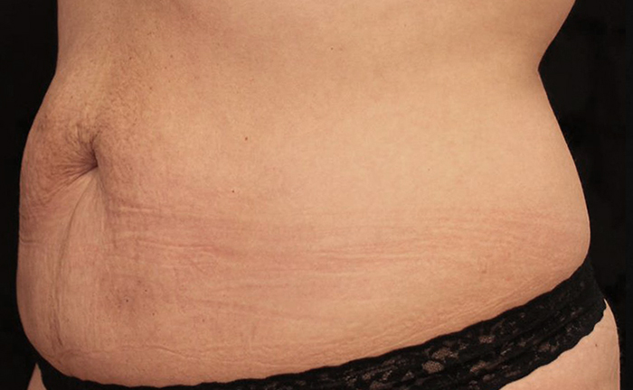truSculpt 3D fat removal before treatment - Photo courtesy of Tahl Humes, D.O.