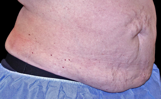 truSculpt 3D fat removal before treatment - Photo courtesy of Amy Taub, M.D.