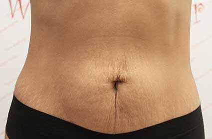 After truScuplt fat reduction treatment