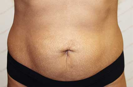 Before truSculpt fat reduction treatment